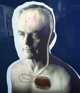 """""""Hirnschrittmacher"""" mit zwei Elektroden und dem Impulsgeber in der Brust"""